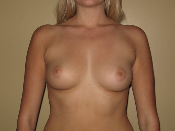 Breast Augmentation Gallery - Patient 13574596 - Image 1