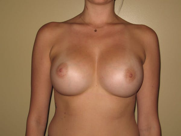 Breast Augmentation Gallery - Patient 13574596 - Image 2