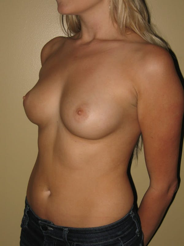 Breast Augmentation Gallery - Patient 13574596 - Image 3