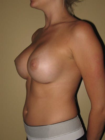 Breast Augmentation Gallery - Patient 13574596 - Image 4