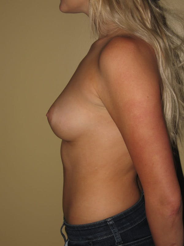 Breast Augmentation Gallery - Patient 13574596 - Image 5