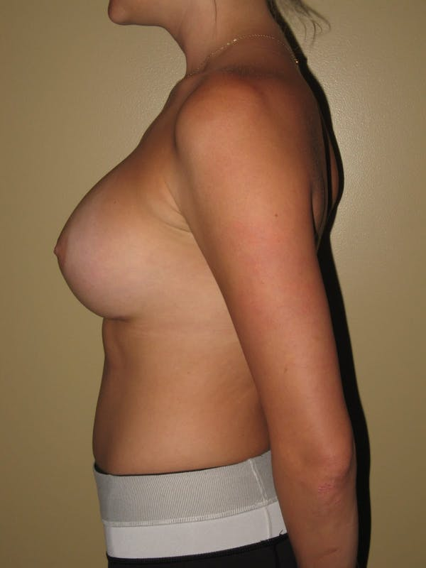 Breast Augmentation Gallery - Patient 13574596 - Image 6
