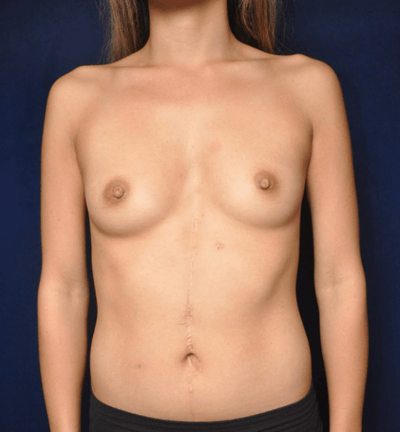 Breast Augmentation Gallery - Patient 13574597 - Image 1