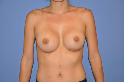 Breast Augmentation Gallery - Patient 13574597 - Image 2