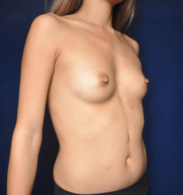 Breast Augmentation Gallery - Patient 13574597 - Image 3