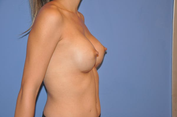 Breast Augmentation Gallery - Patient 13574597 - Image 4