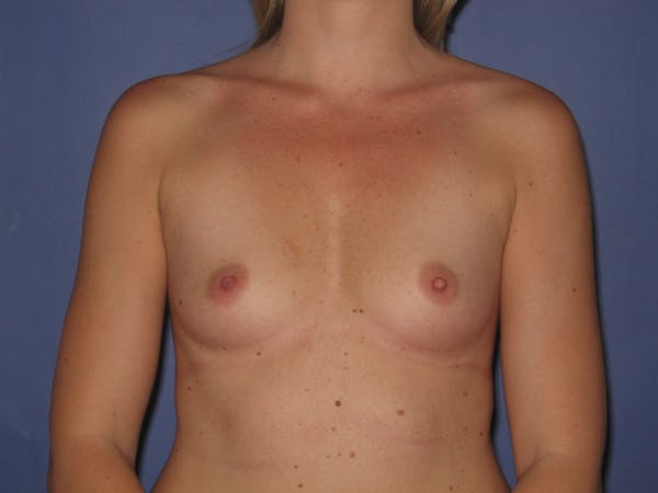 Breast Augmentation Gallery - Patient 13574600 - Image 1