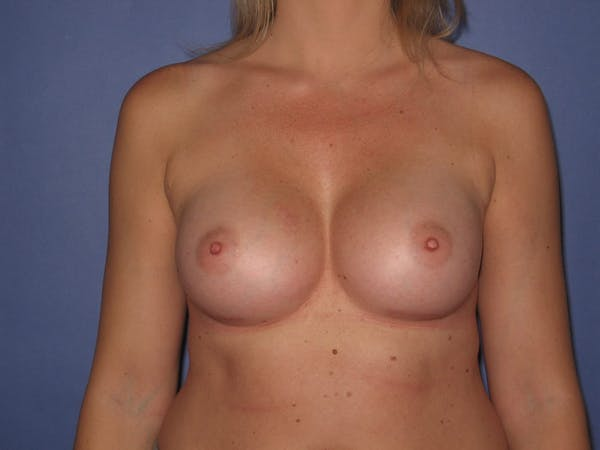 Breast Augmentation Gallery - Patient 13574600 - Image 2