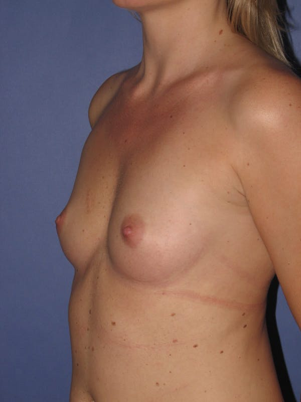 Breast Augmentation Gallery - Patient 13574600 - Image 3