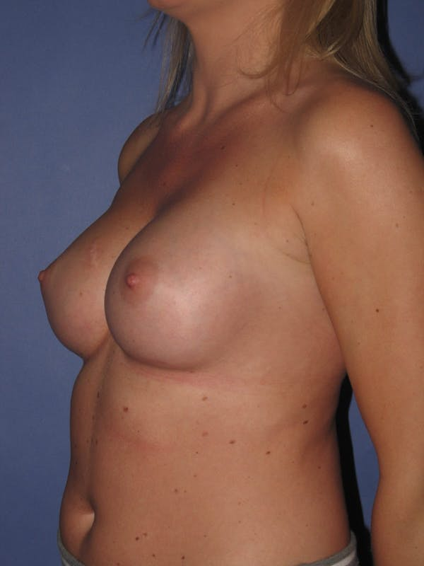 Breast Augmentation Gallery - Patient 13574600 - Image 4