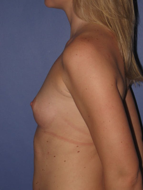 Breast Augmentation Gallery - Patient 13574600 - Image 5