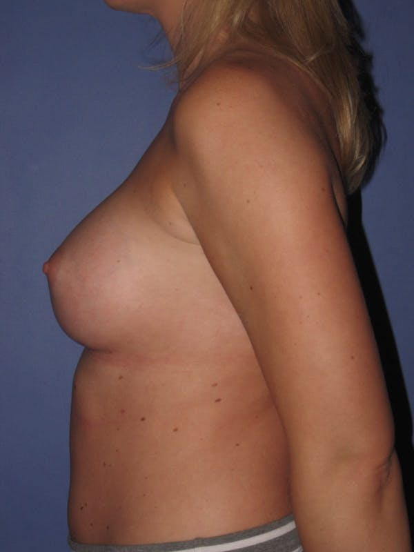Breast Augmentation Gallery - Patient 13574600 - Image 6