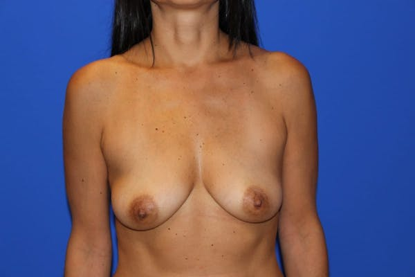 Breast Augmentation Gallery - Patient 13574602 - Image 1