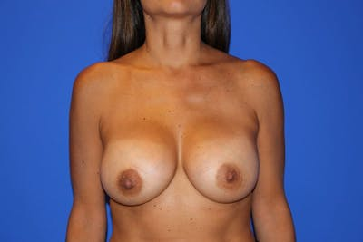 Breast Augmentation Gallery - Patient 13574602 - Image 2
