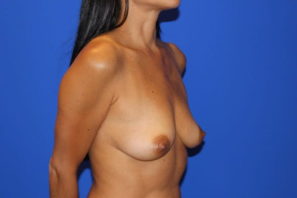 Breast Augmentation Gallery - Patient 13574602 - Image 3