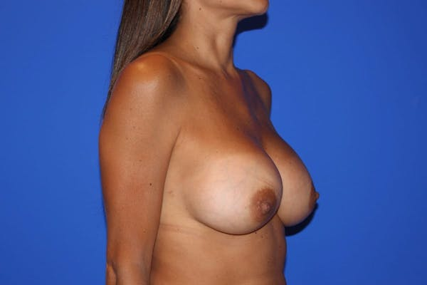 Breast Augmentation Gallery - Patient 13574602 - Image 4
