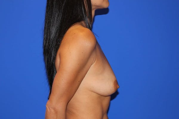 Breast Augmentation Gallery - Patient 13574602 - Image 5
