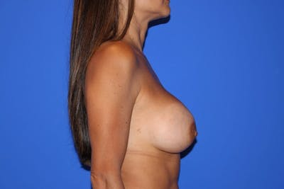 Breast Augmentation Gallery - Patient 13574602 - Image 6