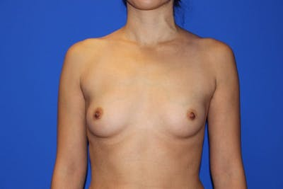 Breast Augmentation Gallery - Patient 13574605 - Image 1