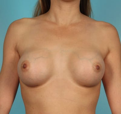 Breast Augmentation Gallery - Patient 13574605 - Image 2