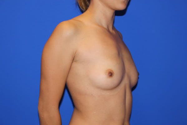 Breast Augmentation Gallery - Patient 13574605 - Image 3