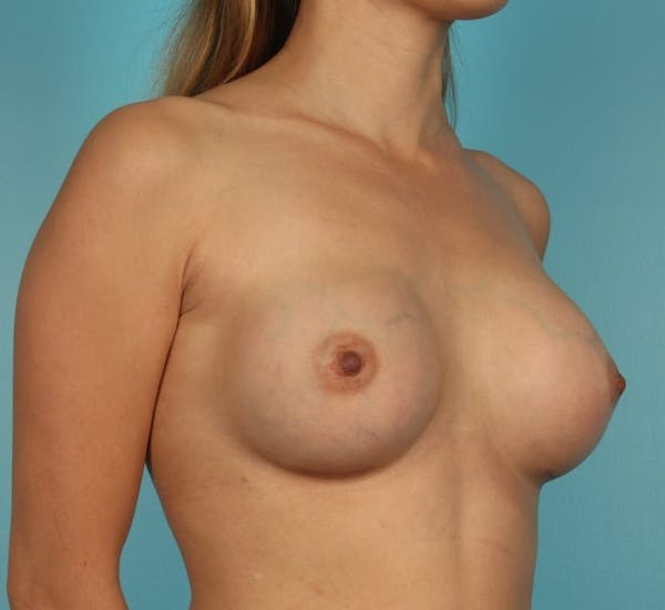 Breast Augmentation Gallery - Patient 13574605 - Image 4
