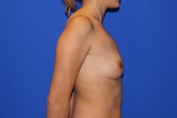 Breast Augmentation Gallery - Patient 13574605 - Image 5