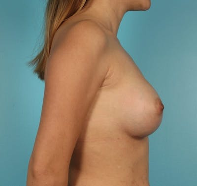 Breast Augmentation Gallery - Patient 13574605 - Image 6