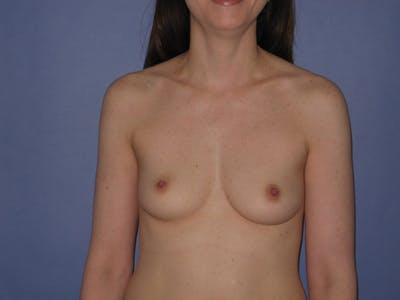 Breast Augmentation Gallery - Patient 13574609 - Image 1
