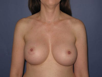Breast Augmentation Gallery - Patient 13574609 - Image 2