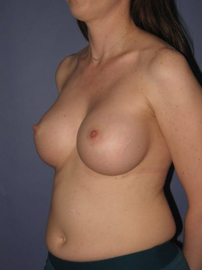 Breast Augmentation Gallery - Patient 13574609 - Image 4