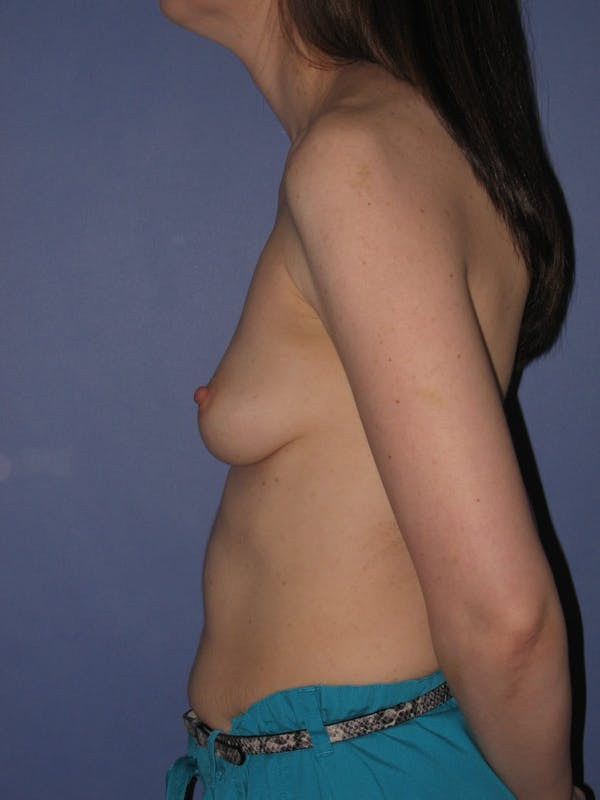 Breast Augmentation Gallery - Patient 13574609 - Image 5