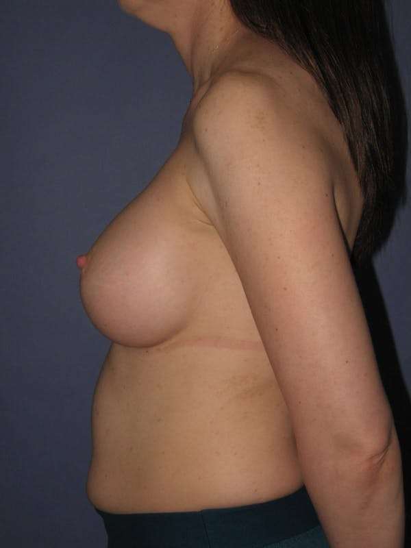 Breast Augmentation Gallery - Patient 13574609 - Image 6