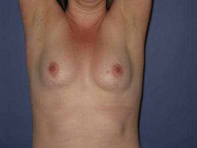 Breast Augmentation Gallery - Patient 13574610 - Image 1