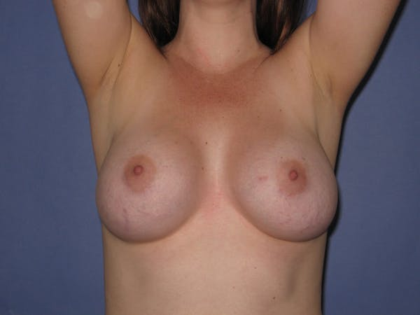 Breast Augmentation Gallery - Patient 13574610 - Image 2