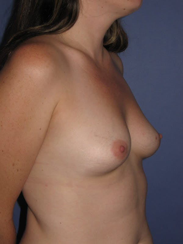 Breast Augmentation Gallery - Patient 13574610 - Image 3