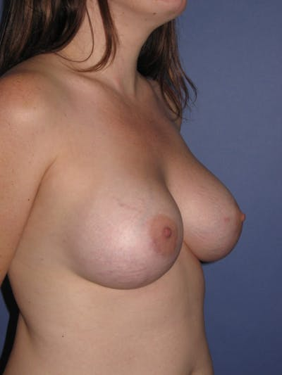 Breast Augmentation Gallery - Patient 13574610 - Image 4