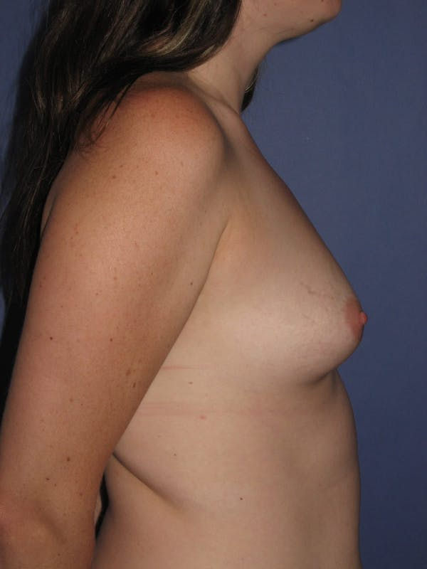 Breast Augmentation Gallery - Patient 13574610 - Image 5