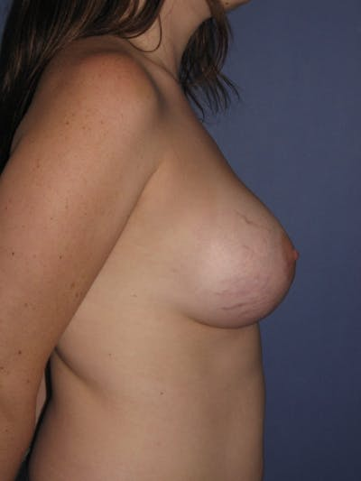 Breast Augmentation Gallery - Patient 13574610 - Image 6