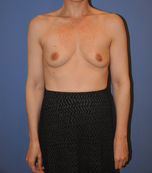 Breast Augmentation Gallery - Patient 13574613 - Image 1