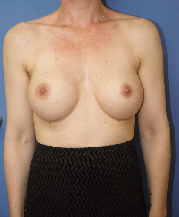 Breast Augmentation Gallery - Patient 13574613 - Image 2