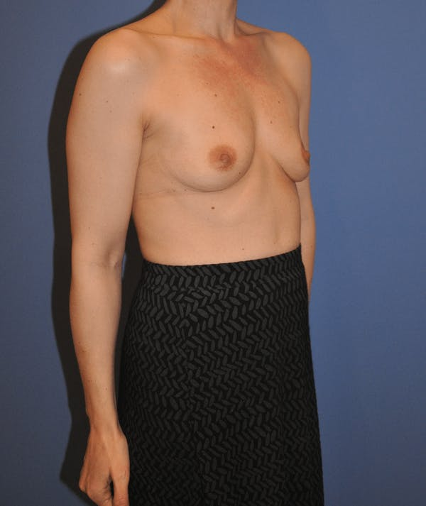 Breast Augmentation Gallery - Patient 13574613 - Image 3