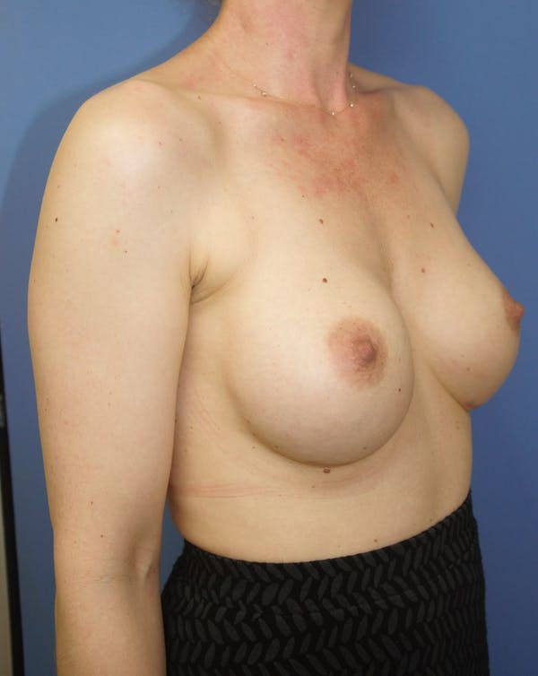 Breast Augmentation Gallery - Patient 13574613 - Image 4