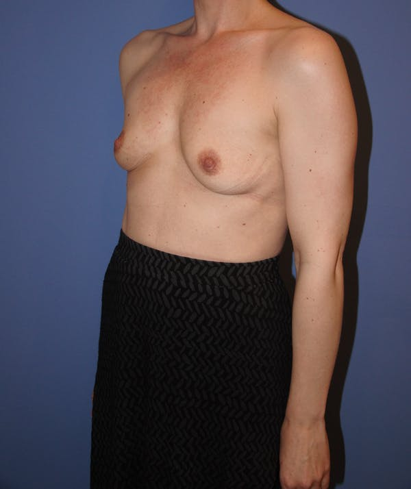 Breast Augmentation Gallery - Patient 13574613 - Image 5