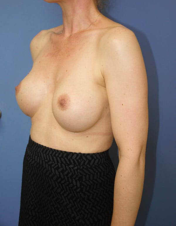 Breast Augmentation Gallery - Patient 13574613 - Image 6