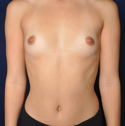 Breast Augmentation Gallery - Patient 13574614 - Image 1
