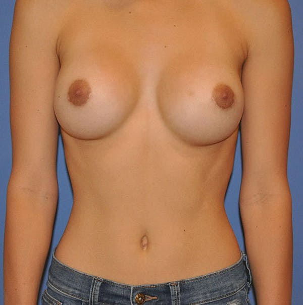 Breast Augmentation Gallery - Patient 13574614 - Image 2