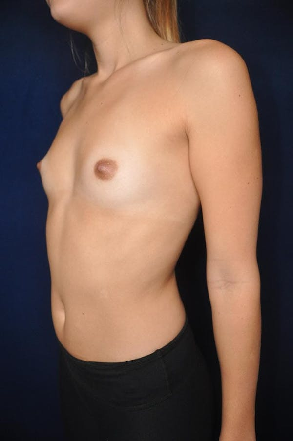 Breast Augmentation Gallery - Patient 13574614 - Image 3
