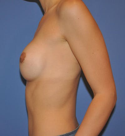 Breast Augmentation Gallery - Patient 13574614 - Image 4