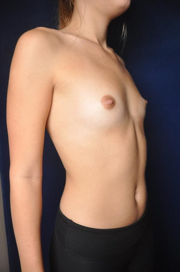 Breast Augmentation Gallery - Patient 13574614 - Image 5